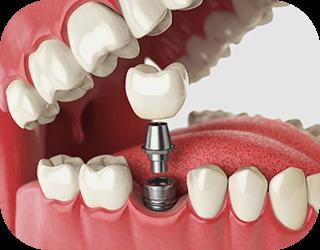 Dental Implants Corio