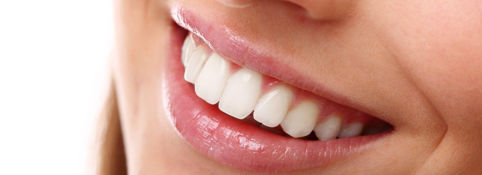 teeth whitening clinic